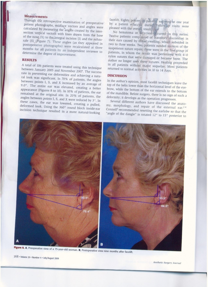 Aesthetic Surgery Journal Volume 29 Issue 4 July -August 2009