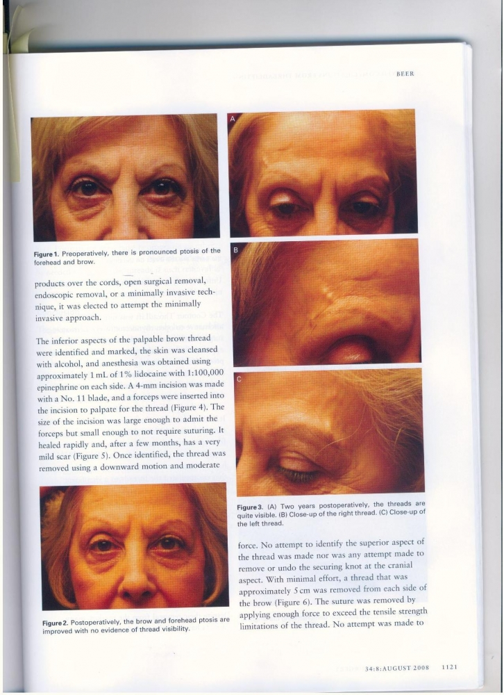 Dermatologic Surgery Volume 34 number 8 August 2008
