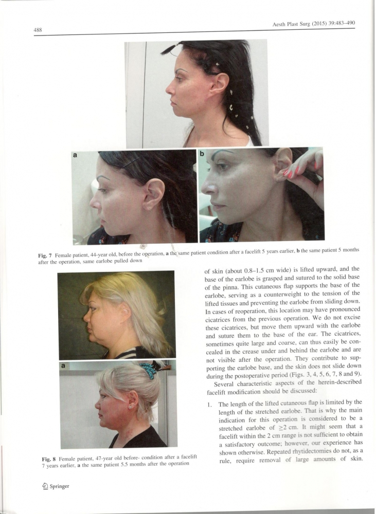 Aesthetic Plastic Surgery 39-4-Aug 2015