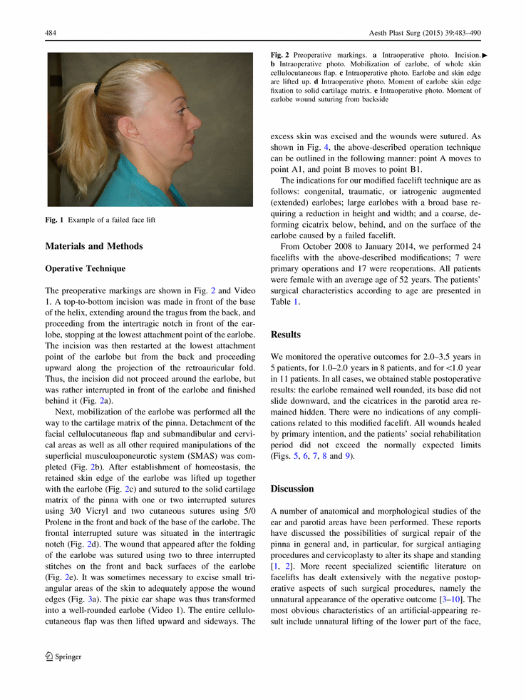 How to Avoid Earlobe Deformation in Face Lift (Aesthetic Plastic Surgery Volume 39, Issue 4 , pp 483-490)