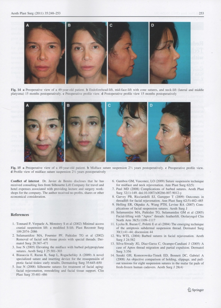 Aesthetic Plastic Surgery Volume 35 Issue 2 Apr 2011