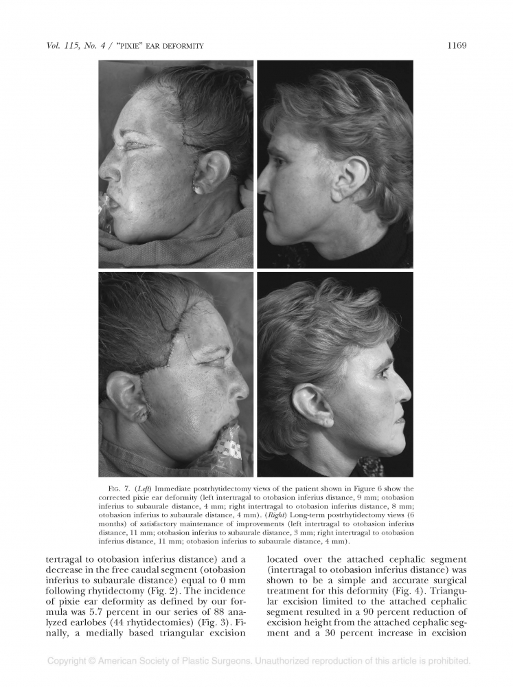 Plastic and reconstructive surgery Volume 118 number 2 Aug 2006